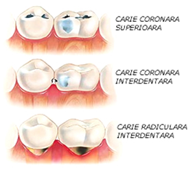 Odontoterapie-Fortuna-Dent